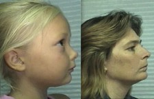 A similar appearance, but mom wants better for her little girl.