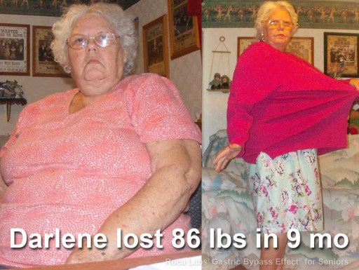 Roca Labs' Gastric Bypass Effect Helps Seniors Gain Health; Darlene, 75, Successfully Dropped 86 lbs