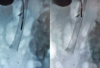 Microwave ablation in bile-duct stent