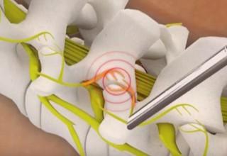 Endoscopic Rhizotomy