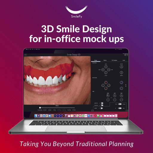 SmileFy Releases 3D Smile Design for Facially Guided In-Office Digital Treatment Planning
