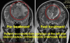 MR images of brain tumor pre- and post-microwave treatment