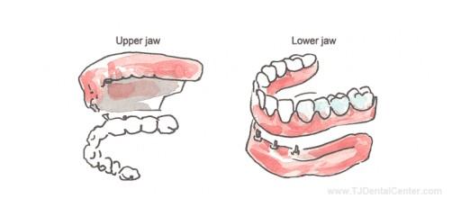 Dr. Esteban Ramirez Introduces TJ Dental Center's Website for Discount Dental Work in Tijuana, Mexico