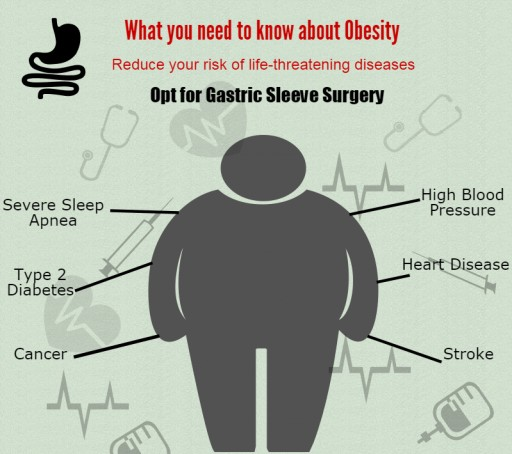 Bariatric Surgery World Offers All-Inclusive Packages for Obesity Surgery in Mexican Border Areas