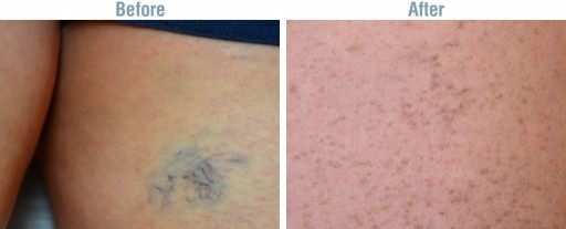 Dr. Raymond Wolf Addresses the Importance of Proper Diagnosis of Venous Disease for Spider and Varicose Veins