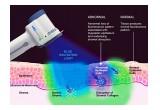 Velscope Fluorescence