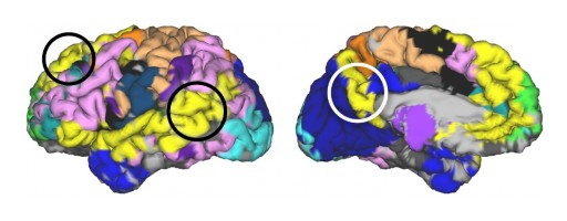 New 3D Brain Mapping Paves the Way for Precise, Personalized Treatments for Symptoms of Alzheimer's and Traumatic Brain Injury