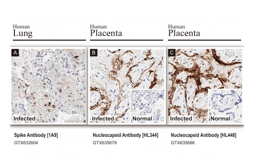 GeneTex SARS-CoV-2 Nucleocapsid and Spike Antibodies Independently Validated by HistoWiz for Immunohistochemistry