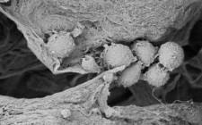 Cancer Stem Cells Embedded in Sanatela Matrix